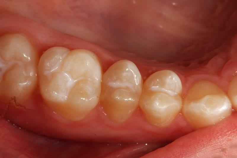 versiegelte Zähne