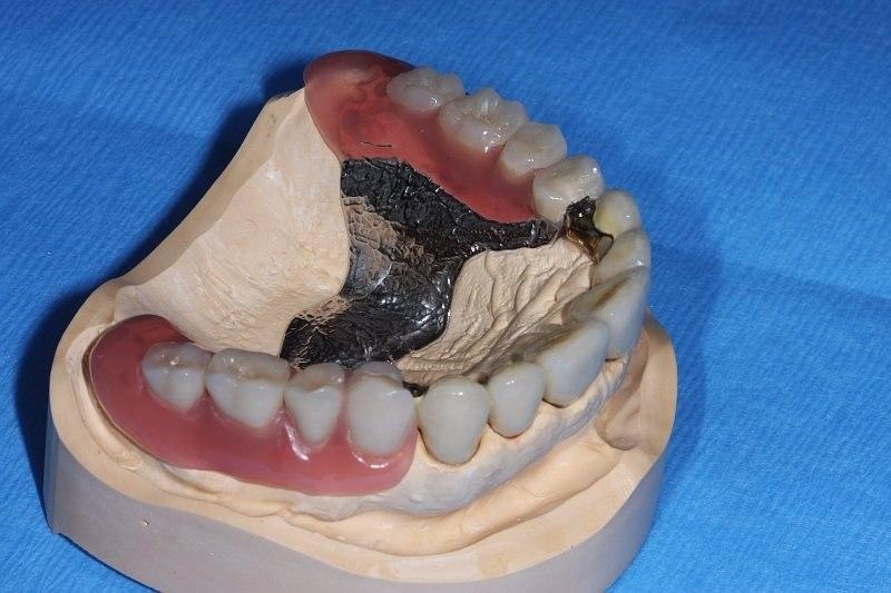 Ästhetische Zahnheilkunde | Zahnarztpraxis Brugger & Jung