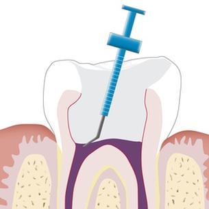 Zahnwurzelbehandlung